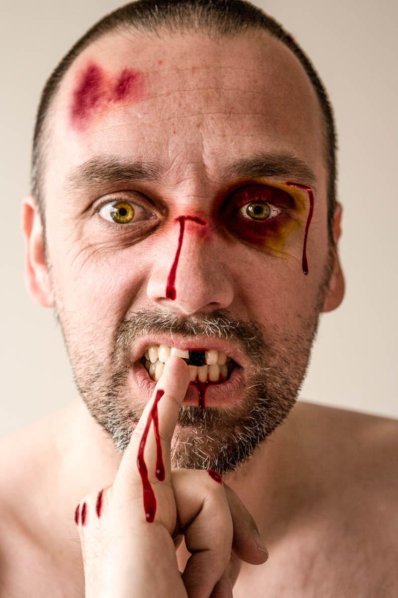 Beaten up! Blood edited in photoshop